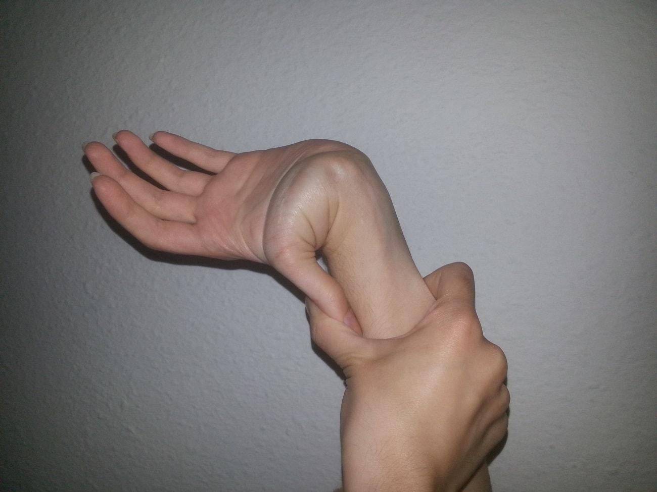 síndrome de marfan