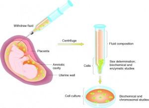 Diagnóstico prenatal- Amniocentesis