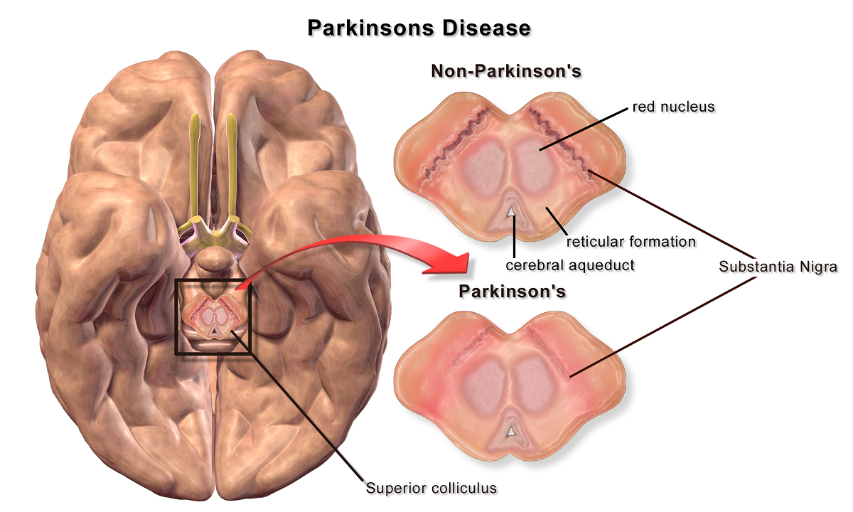genetica del parkinson